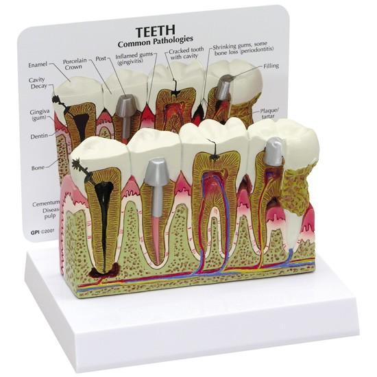 Teeth & TMJ (3)